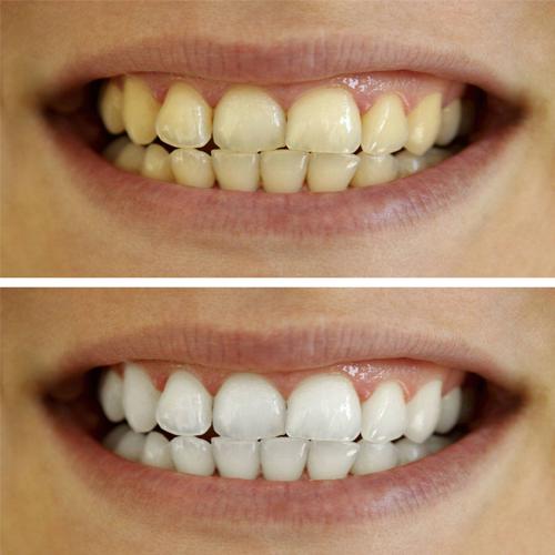 Kako izbeliti zube za 5 minuta